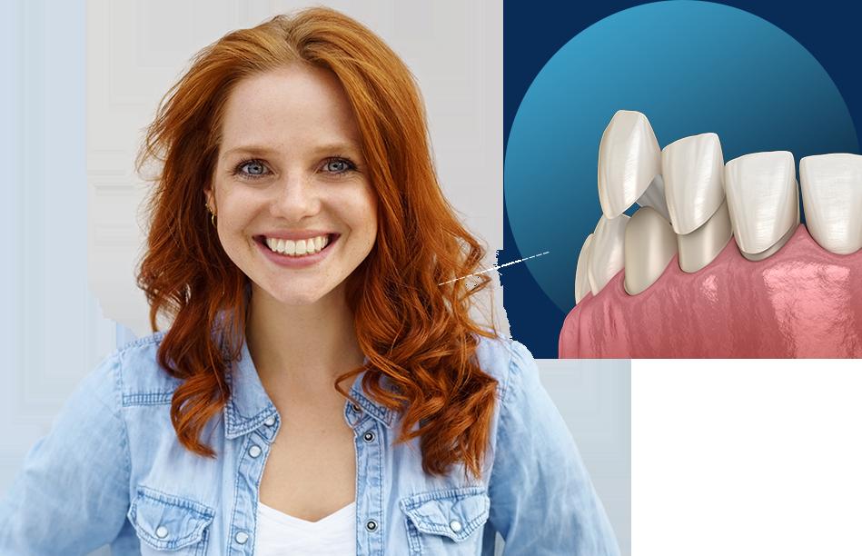 Dental Veneers Reynoldsburg Ohio