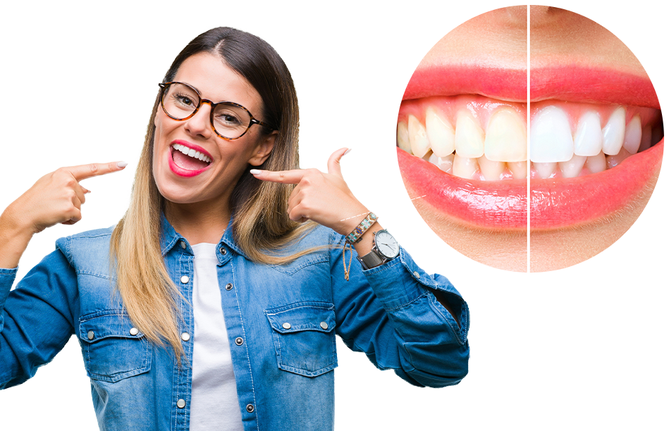 Teeth Whitening Reynoldsburg Ohio